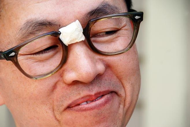 82671cb81 10 razões para evitar óculos baratos – Visão Real